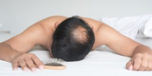 Les meilleurs traitements contre la chute de cheveux