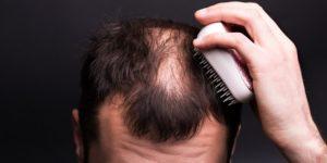 Provillus - Traiter la chute de cheveux