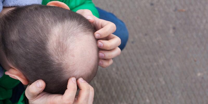 La perte de cheveux est-elle causée par le stress ?