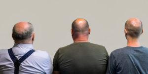 3 hommes chauves - 7 causes de la perte de cheveux que vous ignorez !