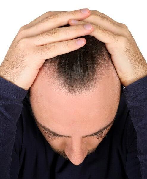 Comprendre le lien entre la testostérone et la perte de cheveux
