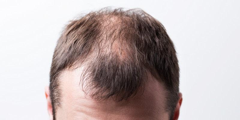 7 conseils pour arrêter naturellement la perte de cheveux