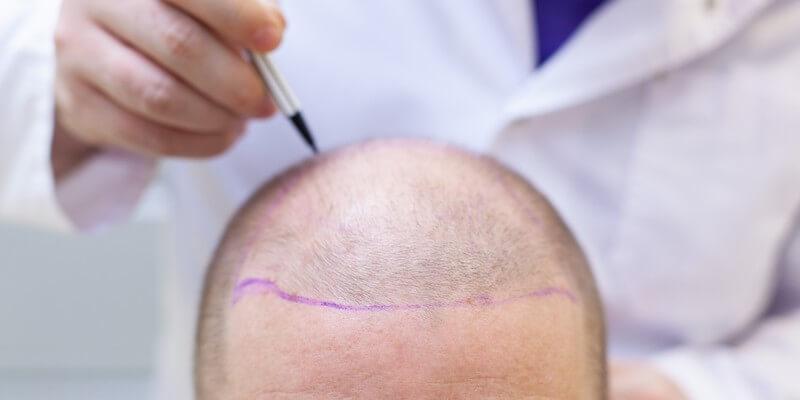 Implants capillaires – tout savoir sur la greffe des cheveux