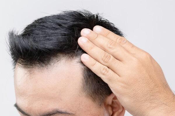 calvitie frontale chez un jeune homme